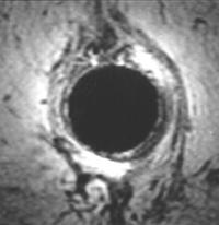 MRI afbeelding van de sluitspieren