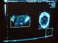 voorbeeld van een 3D-echografie